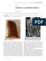 Peritonitis polimicrobiana en DP.pdf