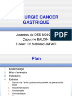 +CHIRURGIE DU CANCER GASTRIQUE