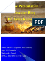 Vascular Ring