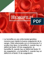 Hemofilias.odp