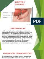 DIAPOSITIVA DE COLECISTITIS.pptx