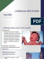 Lesiones cutáneas del recién nacido