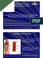 La NIRS Nella Chirurgia Della Dissezione Aortica Di Tipo Stanford A