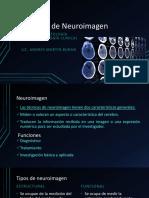 Técnicas de Neuroimagen