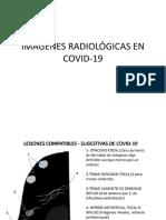 SEVERIDAD RADIOLÓGICA EN COVID-19.pptx