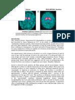 SDL 23 Parkinson's Disease BMS16091064