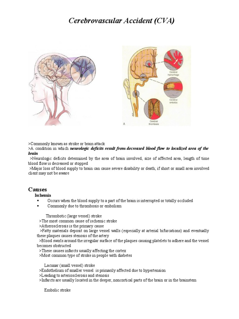 Case Study Cva   Stroke   Thrombosis