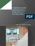 INTERPRETACIÓN RADIOGRÁFICA PERIAPICAL Y PANORÁMICA