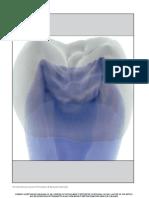 CT Scan Based Finite Element Analysisof Premolar Cuspal Deflection Following Operative Procedures.pdf