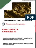 5) Pericoronaritis, Sinusitis, Alveolitis (1).pdf