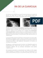 FRACTURA DE LA CLAVICULA.docx