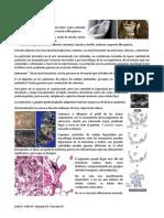 5. NEUMOCONIOSIS NEOPLASIAS.pdf
