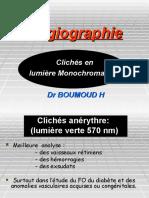 Clichés en lumieres monochrome
