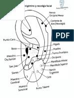 2- Neuralgia facial y trigémino