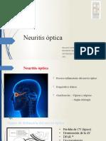 Neuritis óptica kt