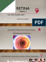 Retina3