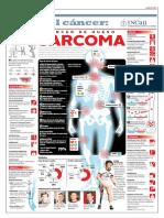 190510-29-sarcoma (1).pdf