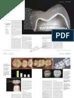 dentalkeramiken
