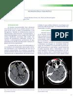 Dialnet-NeumoencefaloTraumatico