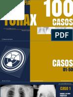Radiografia do Tórax - 100 Casos