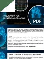 REENTRADA INTRANODAL .pdf