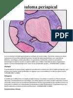Granuloma periapical