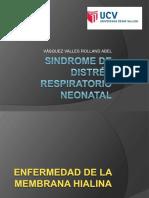 sindromededistrsrespiratorioneonatal-110925203433-phpapp02