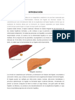 articulo cirrosis cardiogenica