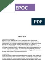 trabajo-EPOC