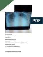 foto thorax AP position