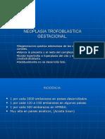 neoplasia-trofoblastica