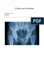 Assignment (hip joint)