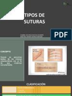 TIPOS DE SUTURA-ILSA