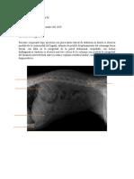 Informe radiografico final.docx