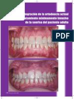 integracion-de-la-ortodoncia-actual-en-el-tratamiento-minimamente-invasivo-de-la-sonrisa-del-paciente-adulto.pdf