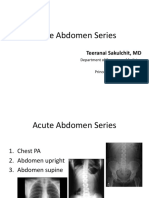 Acute Abdomen Seriesss