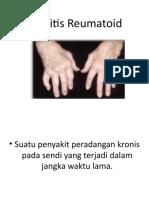 Artritis Reumatoid.pptx