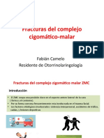 Fracturas del complejo cigomático-malar.pptx