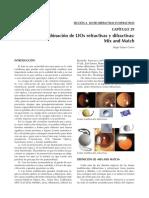 LIOS refractivas y difractivas