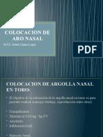 aro nasal