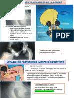 LUXACIONES TRAUMATICAS DE CADERA.