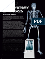 The Mystery Of X-Rays