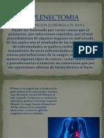 ESPLENECTOMIA.pptx