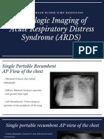 Gambaran radiologi pada ARDS