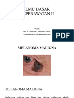 Penyakit kulit Melanoma