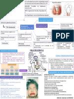 HIPOTIROIDISMO - VILLEGAS.pdf