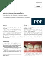 Coronas estéticas en odontopediatría-2