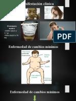 Síndrome nefrotico.pptx