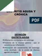 Gastritis Aguda y Crónica