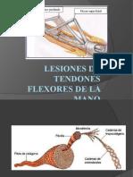 lesionesdetendonesflexores-140606183109-phpapp01
